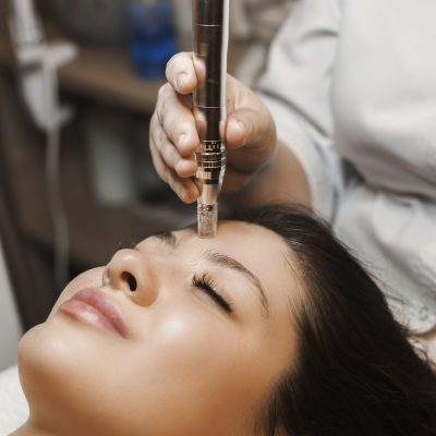 Microneedling For Injectophobes